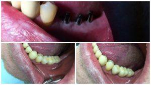Пациент № 28. Обратился с жалобами отсутствие зубов нижняя челюсть слева, Лечение одноэтапная имплантация с непосредственной нагрузкой, вид готовой работы через 5 дней после опе
