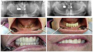 Пациент №18. Жалобы на отсутствие зубов в.ч. и н.ч. Лпечение _ одноэтапная имплантация нижняя челюсть, металлокерамическая конструкция. Частичный съемный протез (мягкий).
