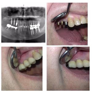 Пациент №30 Обратился с жалобами на отсутствие зубов верхняя челюсть справа. Лечение имплантация, металлокерамическая конструкция. Врач Дюльмезов А.А. з.техник Ткач В.В.