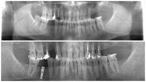 пациент №16. до имплантации после лечения зубов и имплантации врач Дюльмезов А.А.